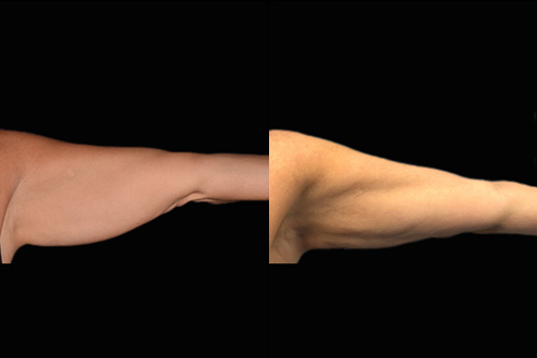 Bodytite Surgery For Arms Before & After Photo