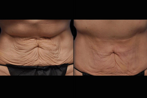 Before And After Bodytite