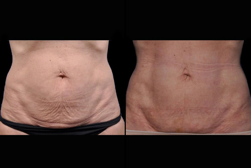 Bodytite Before And After Image