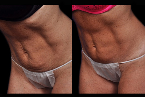 Bodytite Before & After Image