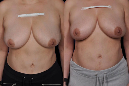Bodytite Breast Enhancement Before And After