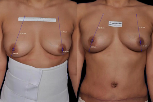 Bodytite Breast Enhancement Before & After