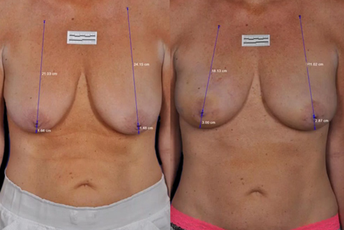 Bodytite Breast Enhancement Results