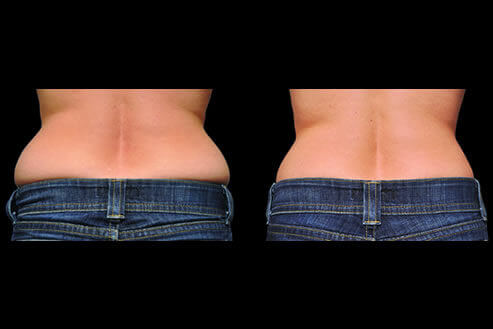 CoolSculpting Fat Reduction Before and After