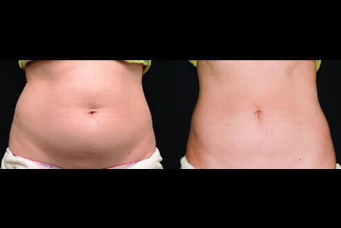 Non-Invasive Body Sculpting Before and After