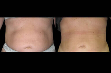 Aqualipo Stomach Liposuction Results