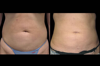 Stomach Lipo Before and After Results