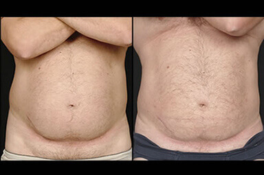 Aqualipo Stomach Liposuction, Male Patient
