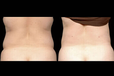 Aqualipo Stomach Liposuction Before and After