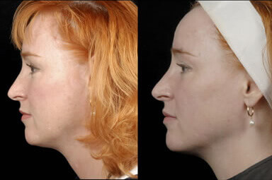 Aqualipo Neck Lipo Before and After