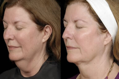 Aqualipo Neck Liposuction Before and After
