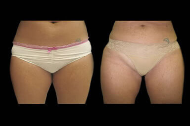 Aqualipo Leg Lipo Before and After