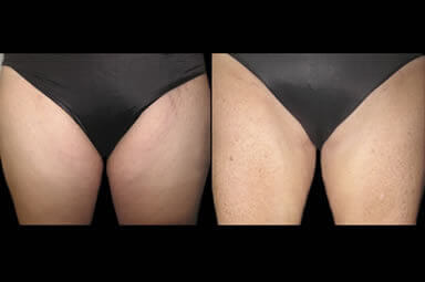 Leg Lipo Before and After