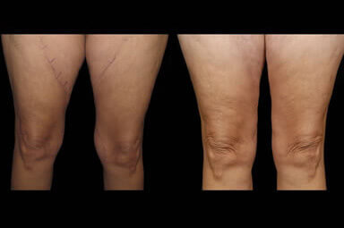 Leg Liposuction Before and After
