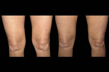 Aqualipo Thigh Liposuction Before And After