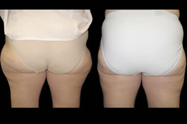 Leg Liposuction Before And After Photos