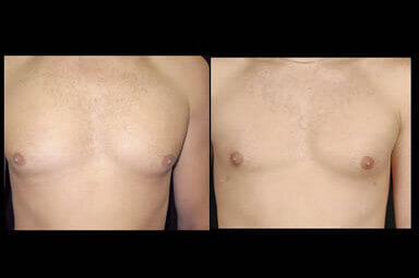 Aqualipo Male Breast Liposuction Before And After