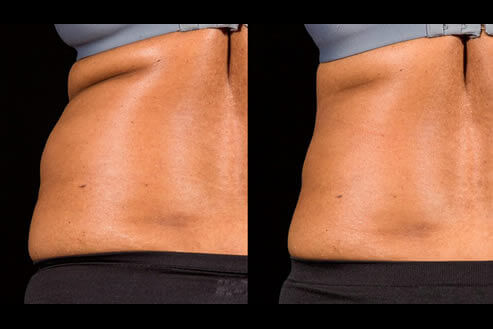 Non-Invasive Laser Fat Removal Before and After