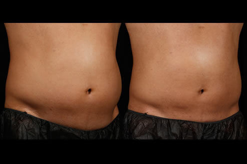 SculpSure Laser Fat Removal Before and After