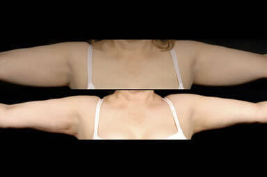 Arm Liposuction Before And After Photos