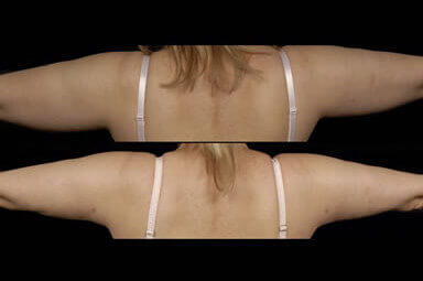 Arm Liposuction, Aqualipo Before & Afters