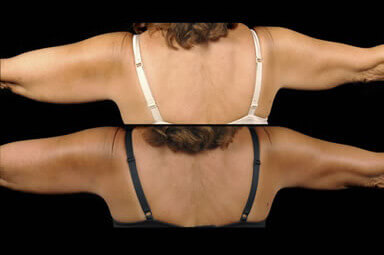Aqualipo Arm Liposuction Before and After