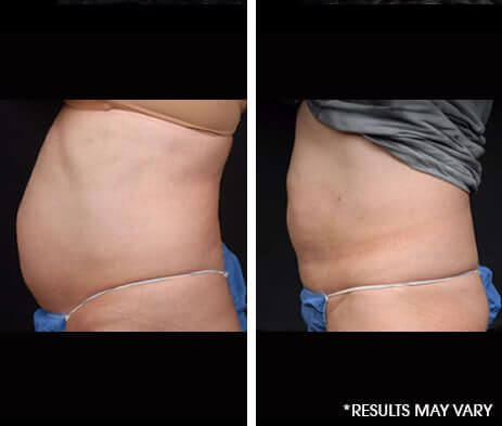 Minimally Invasive Body Sculpting Before and After