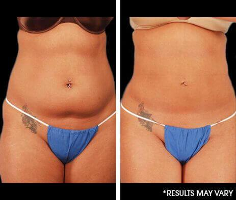 Minimally Invasive Body Sculpting Before and After Photos