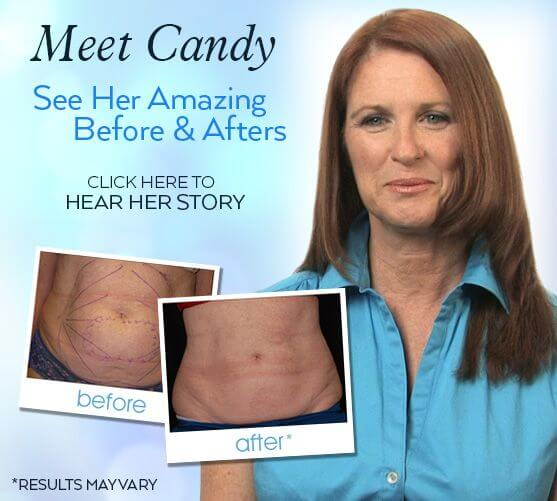 See Candy's Amazing Before & After Results