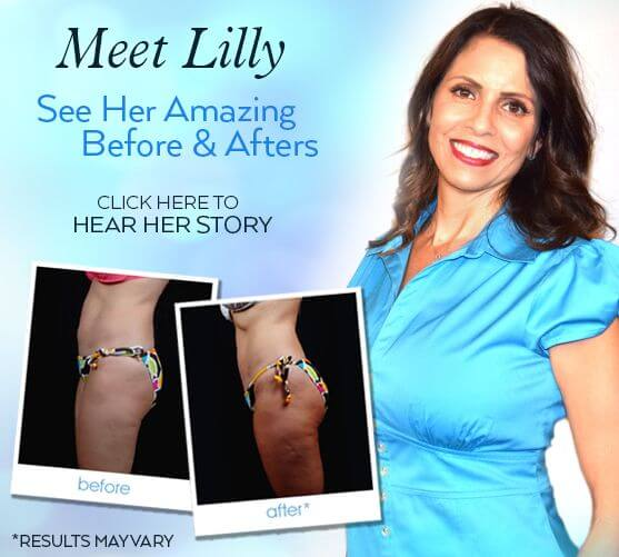 See Lilly's Amazing Aqualipo Before and Afters
